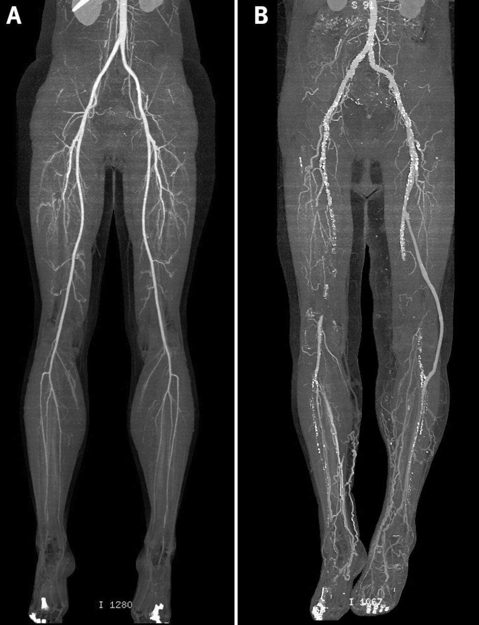 Diagnosis And Management Of Peripheral Arterial Disease