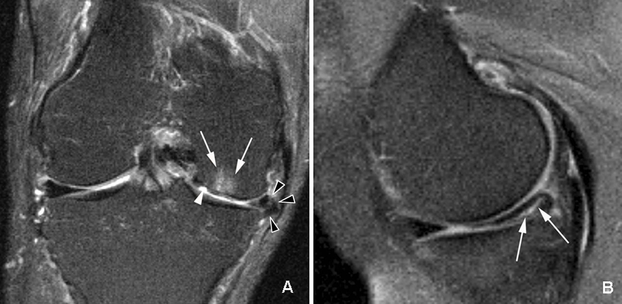 prevalence of abnormalities in knees detected by mri in adults without knee osteoarthritis