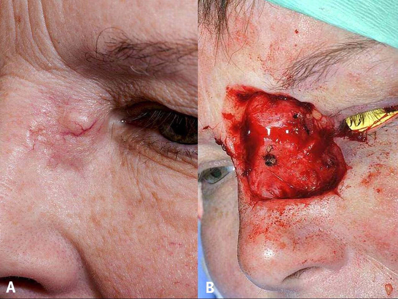 facial basal cell carcinoma | the bmj