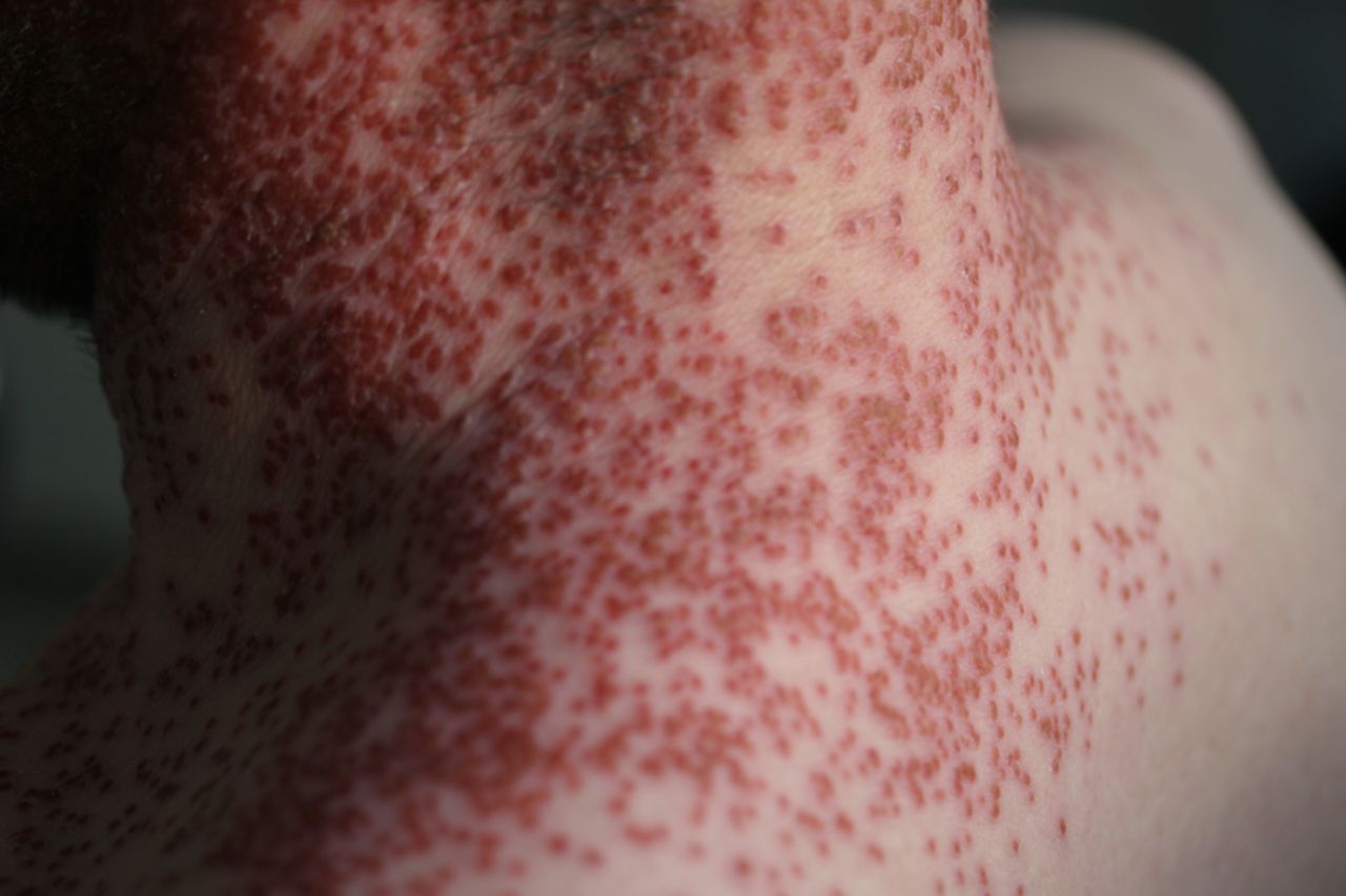 A skin rash to remember | The BMJ