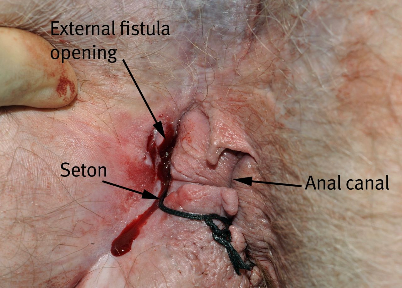 Anal fistula infected the word