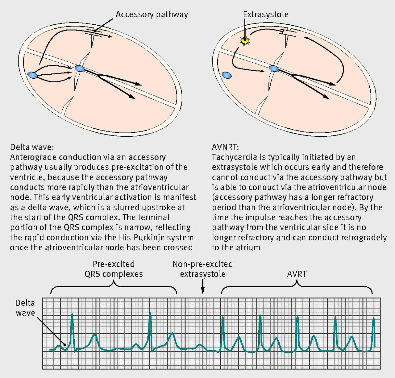 Diagnosis and management of supraventricular tachycardia   The BMJ
