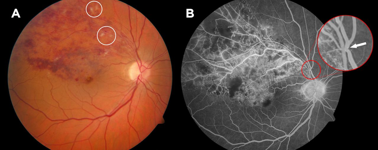 comorbidity in patients with branch retinal vein occlusion
