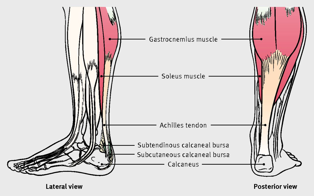 Achilles tendon disorders   The BMJ