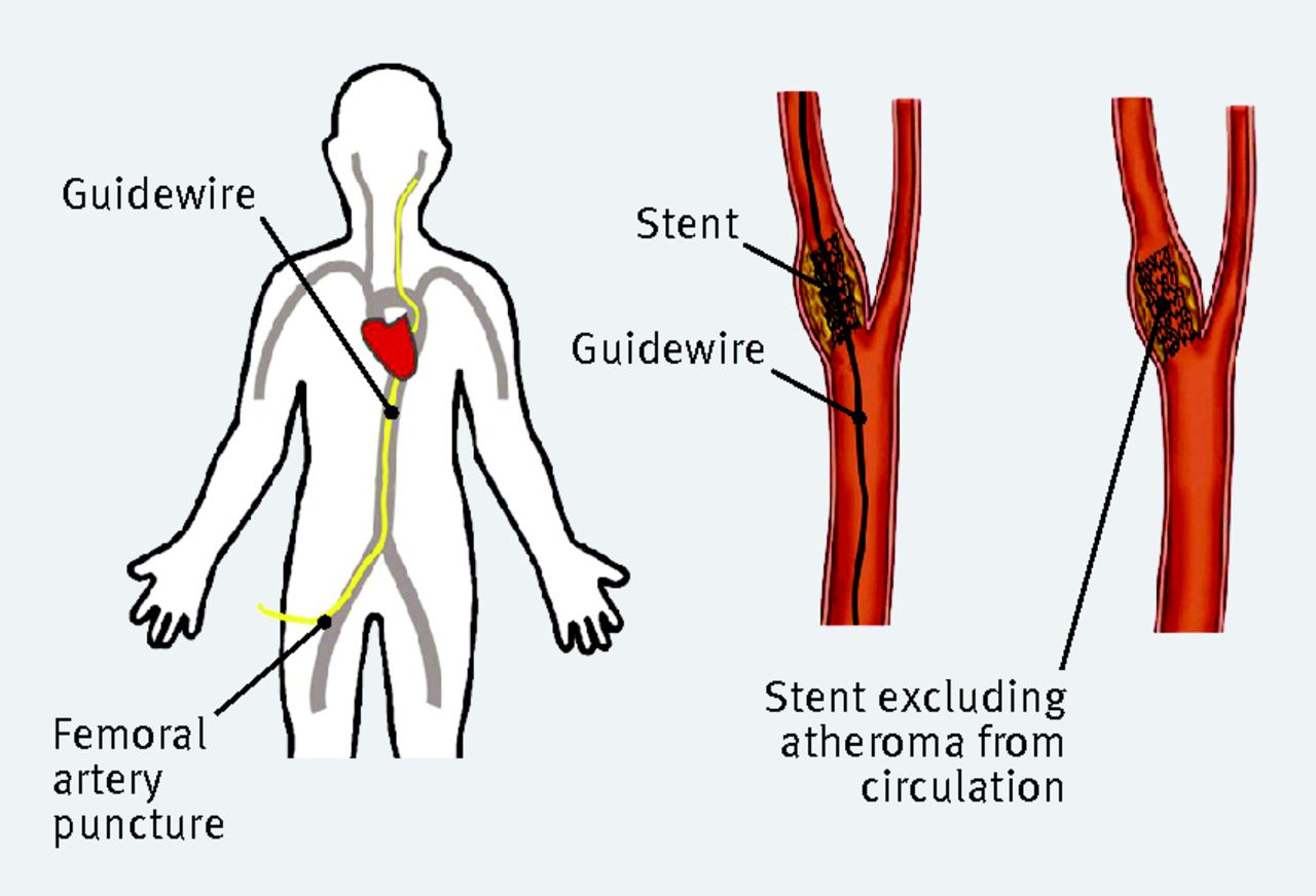 Diagnosis And Management Of Carotid Atherosclerosis The Bmj