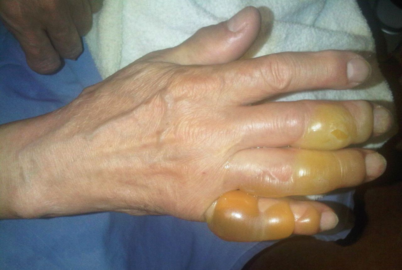 Painful Blisters On The Hand