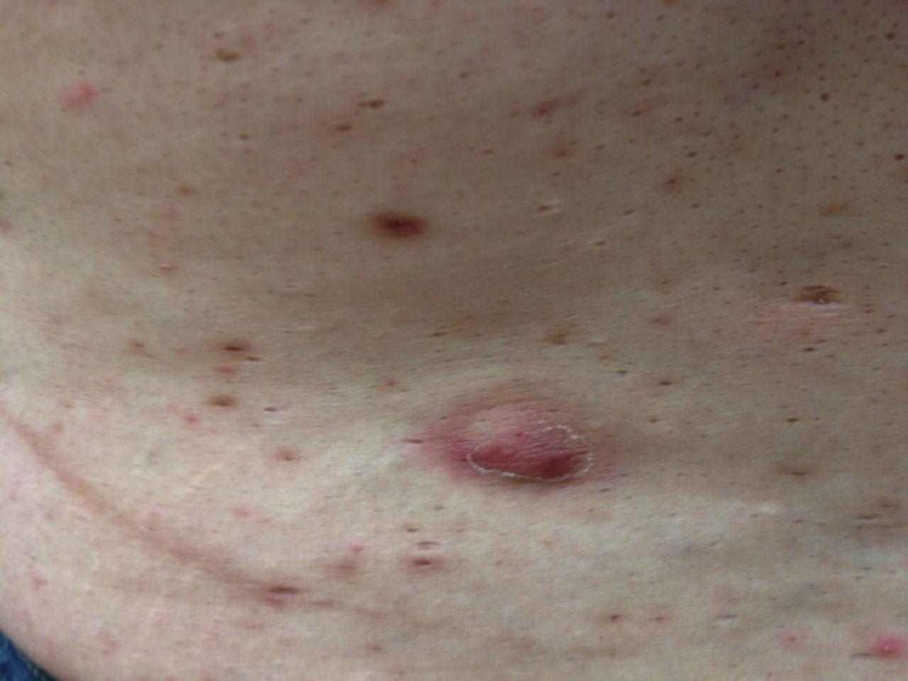 Hidradenitis suppurativa: a case study | HSAWARENESS.ORG