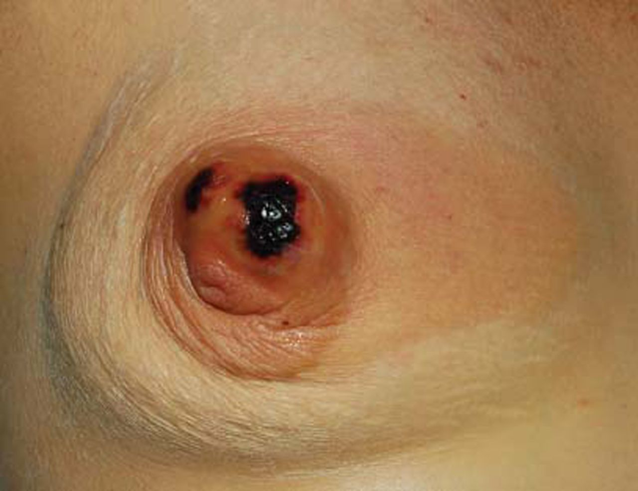 Abcess in breast infection