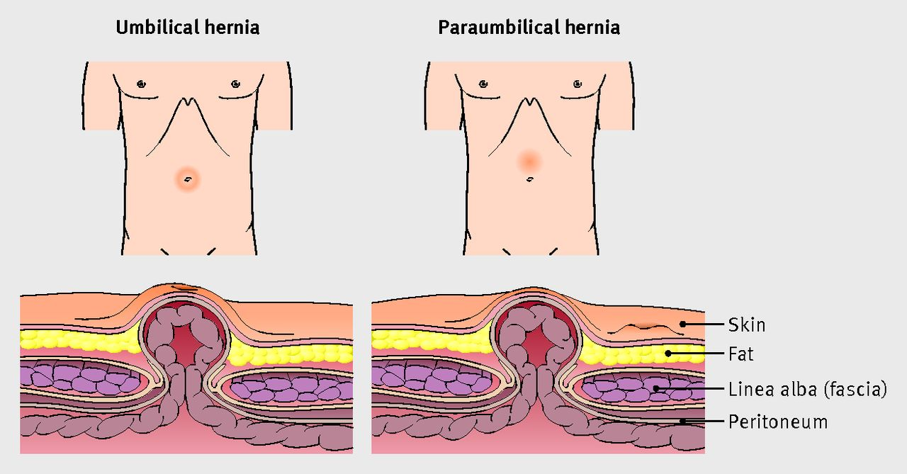 Umbilical hernia | The BMJ