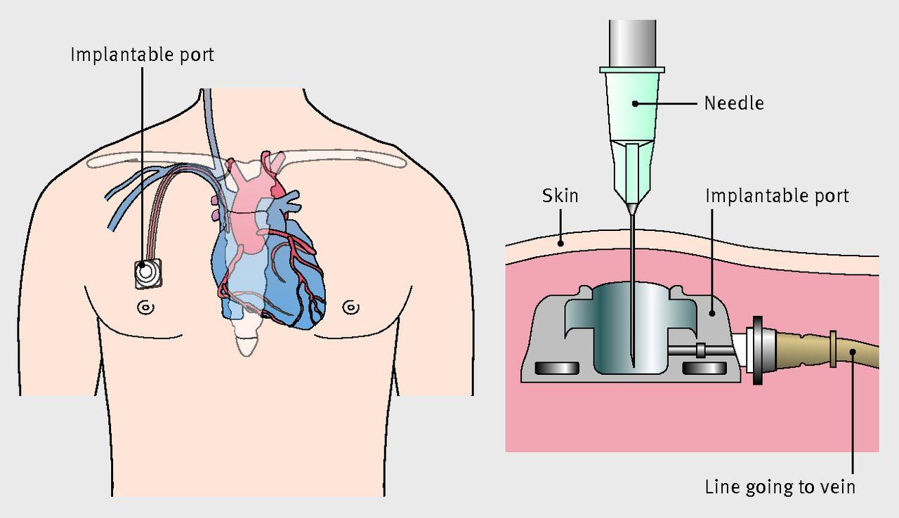 Central Venous Catheters The Bmj