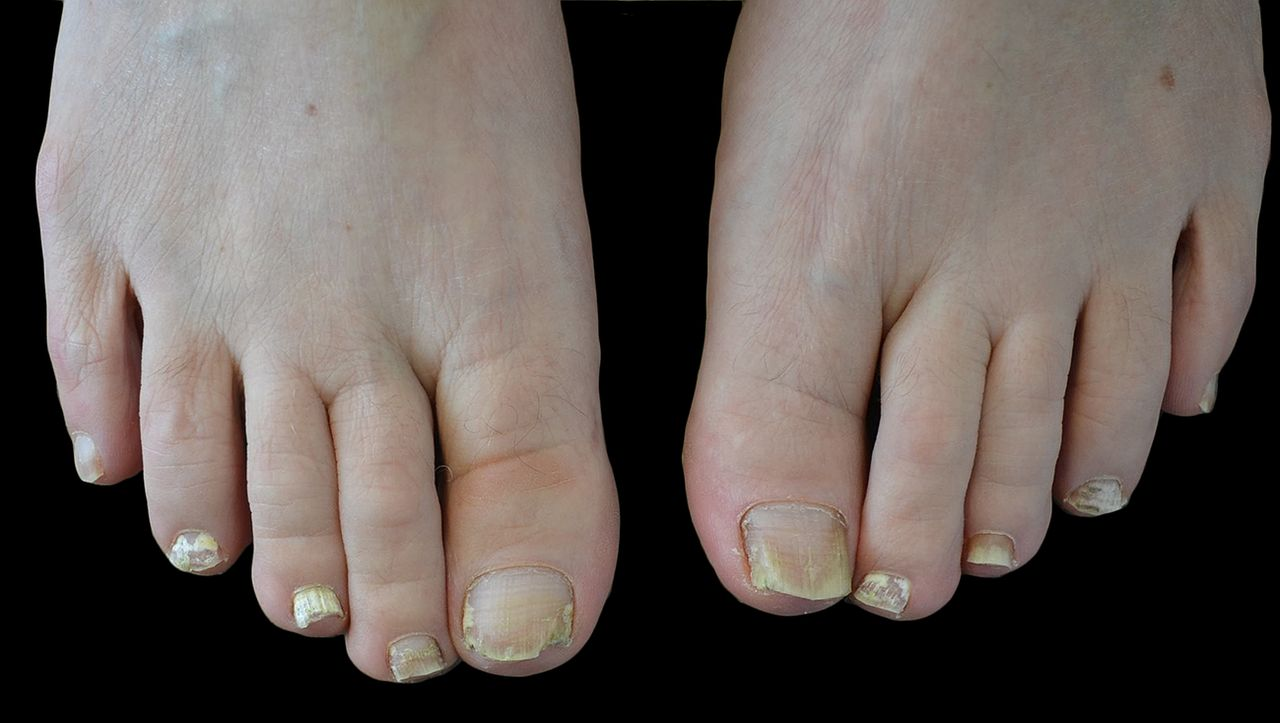 Fungal nail infection: diagnosis and management | The BMJ