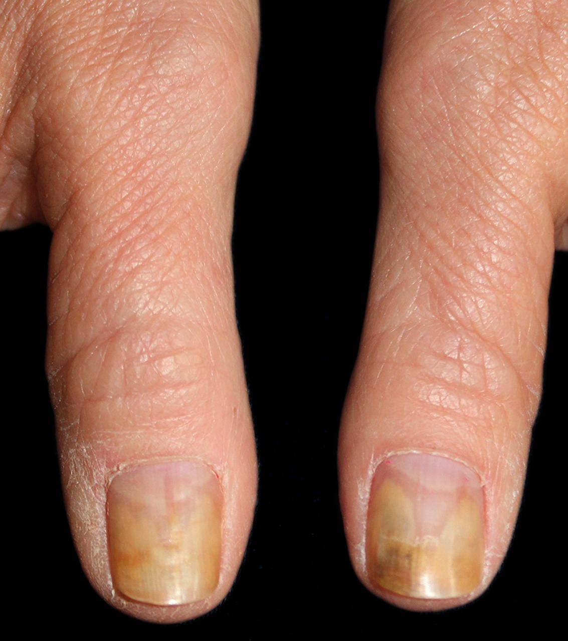 Fungal Nail Infection Diagnosis And Management