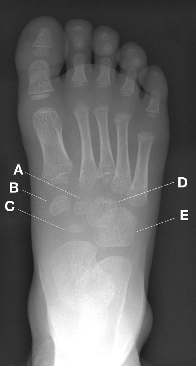 Radiograph Of A 3 Year Old Child S Right Foot The Bmj