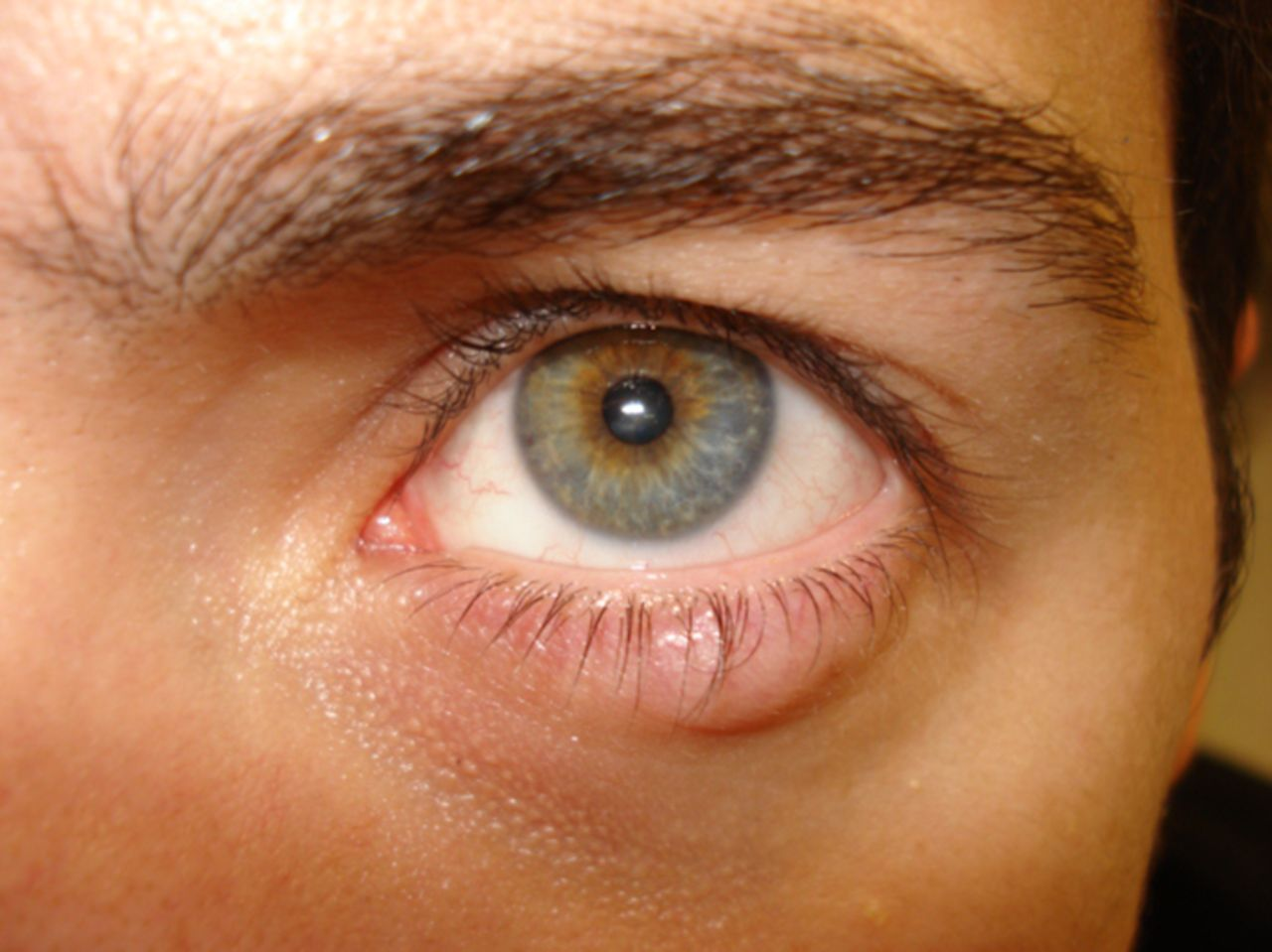 eyelid lumps and lesions the bmj