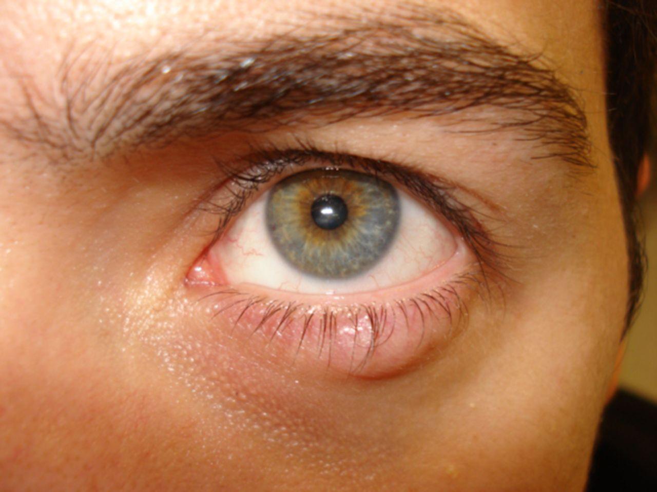 Ячмень на глазу у ребенка: как лечить в домашних условиях 49