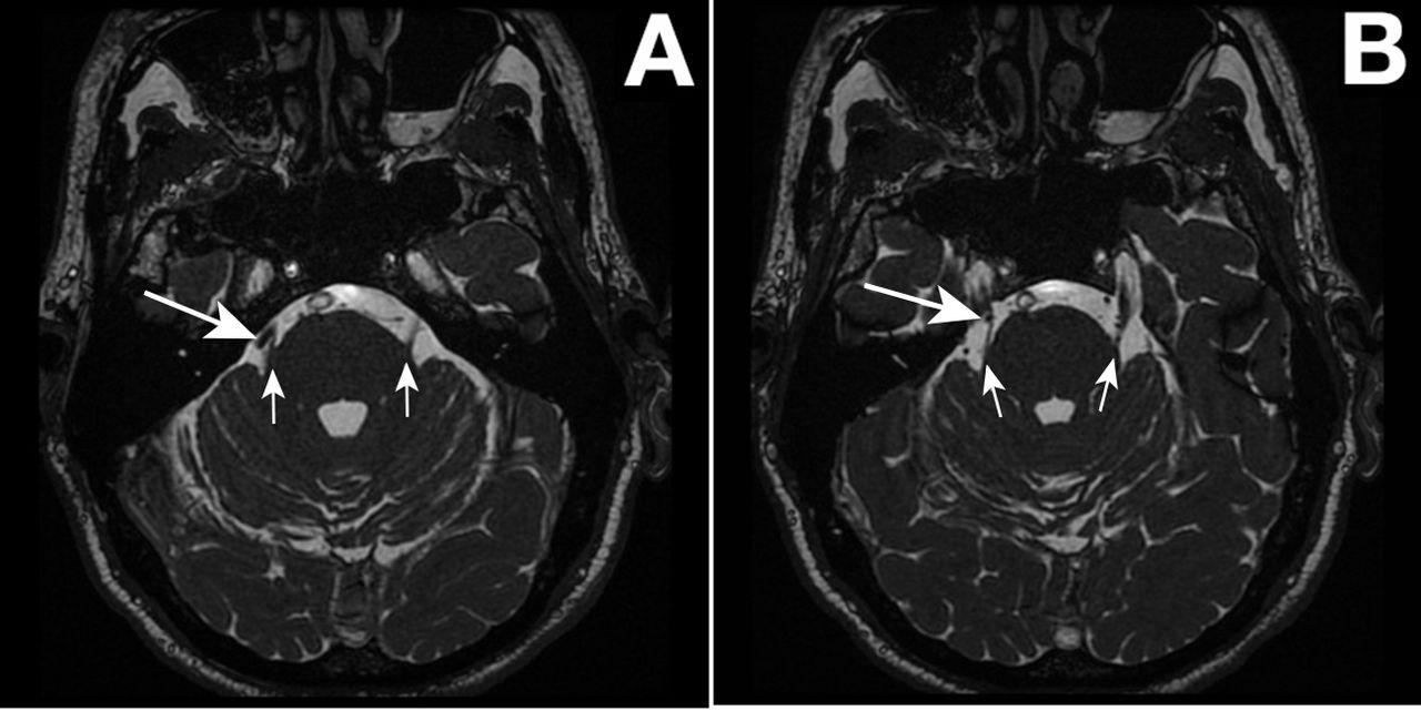 Trigeminal neuralgia   The BMJ