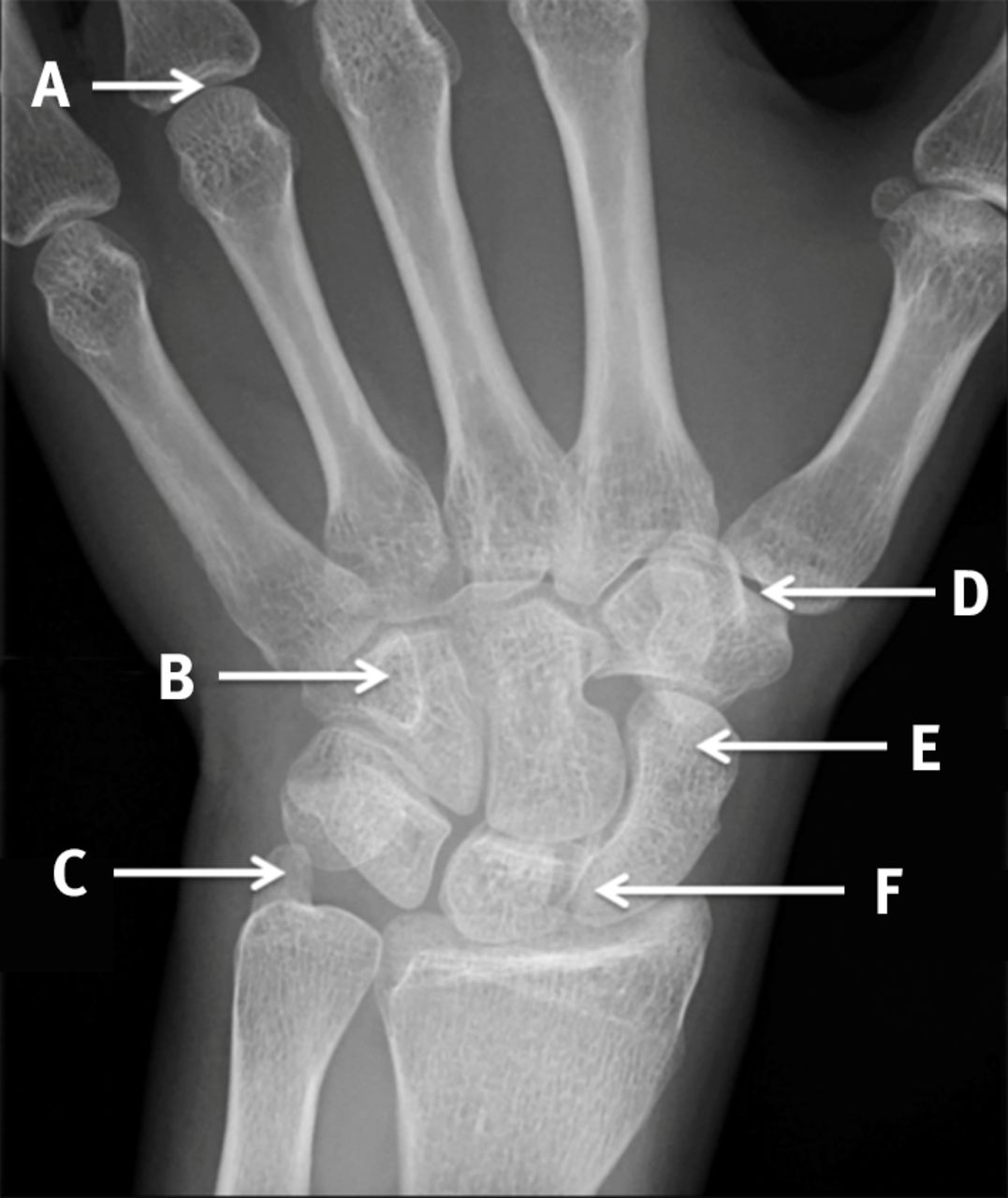 scaphoid view radiograph of the left wrist the bmj