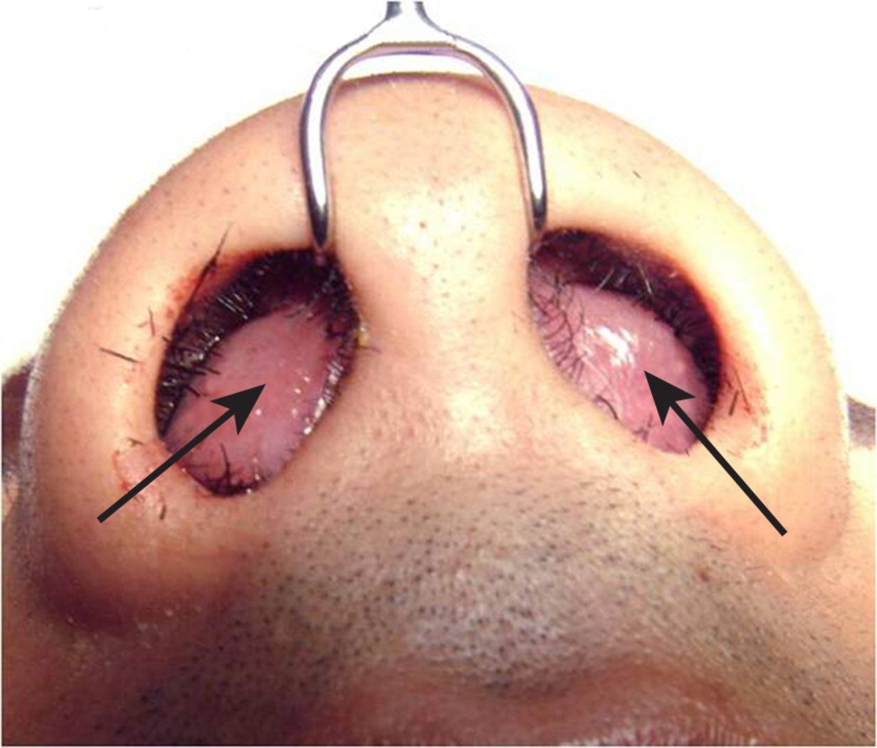 Nasal septal haematoma | The BMJ