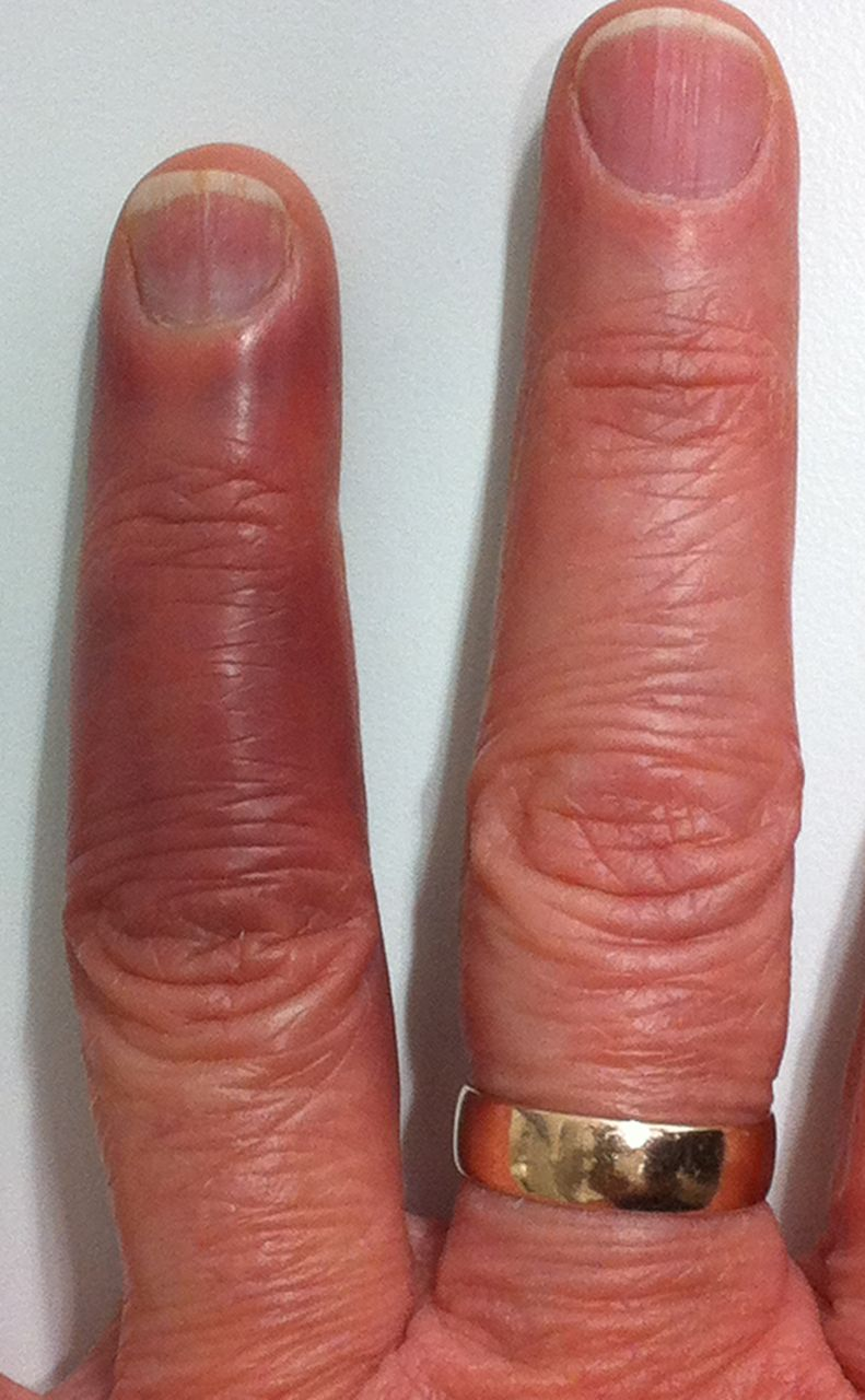 A bruised finger | The BMJ