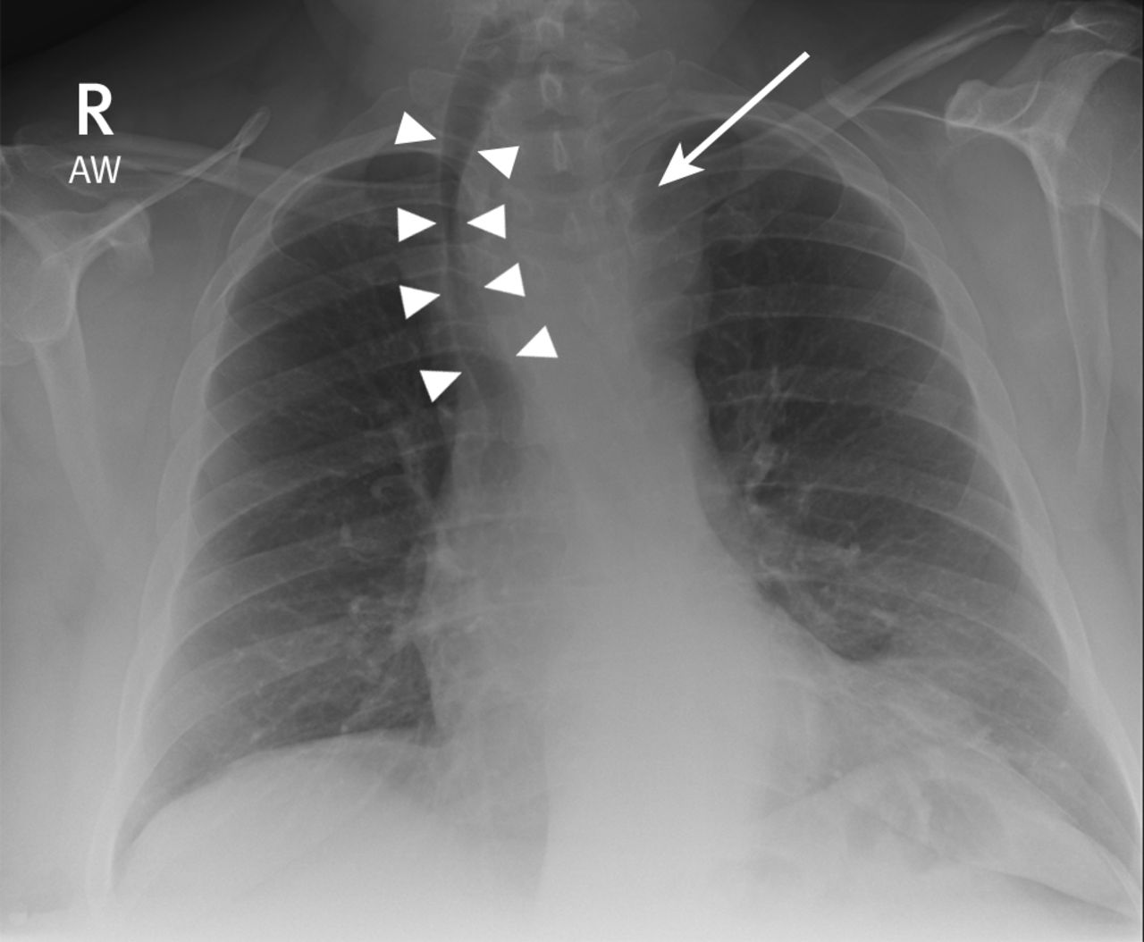 An Abnormal Chest Radiograph