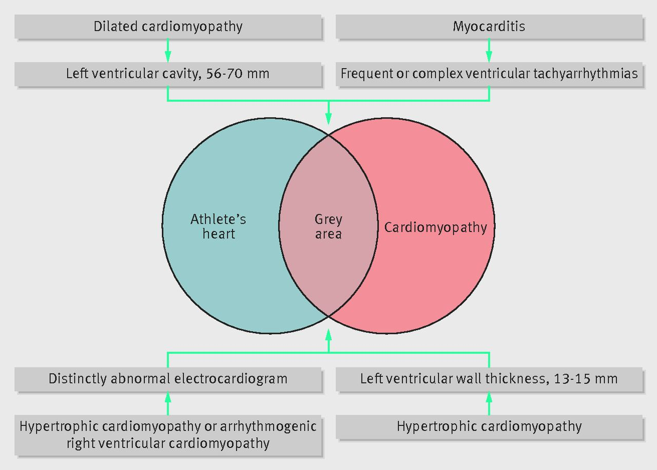 Discussion on this topic: In the Genes: Sudden Cardiac Death From , in-the-genes-sudden-cardiac-death-from/