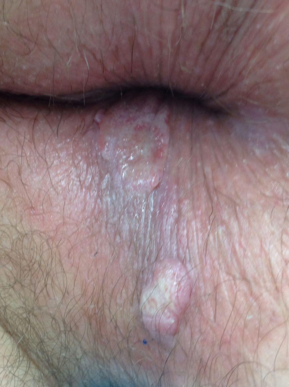 Syphilitic condylomata...