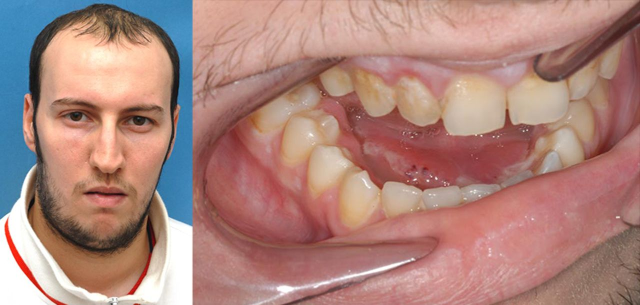 Management Of Severe Acute Dental Infections The Bmj