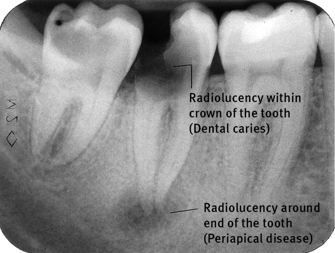 Management of severe acute dental infections | The BMJ