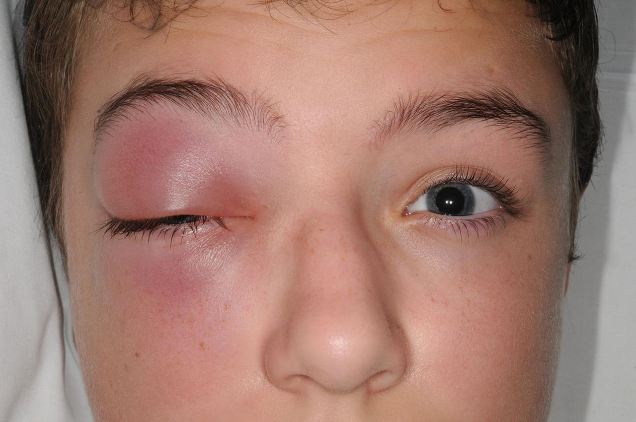 A swollen right eye in a child | The BMJ