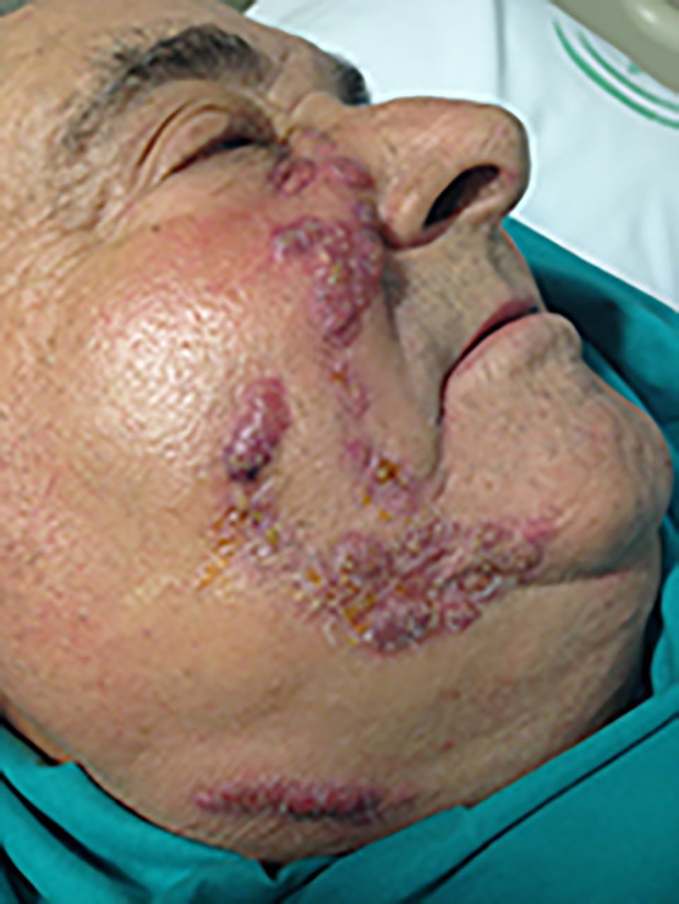 Actinomycosis  The BMJ
