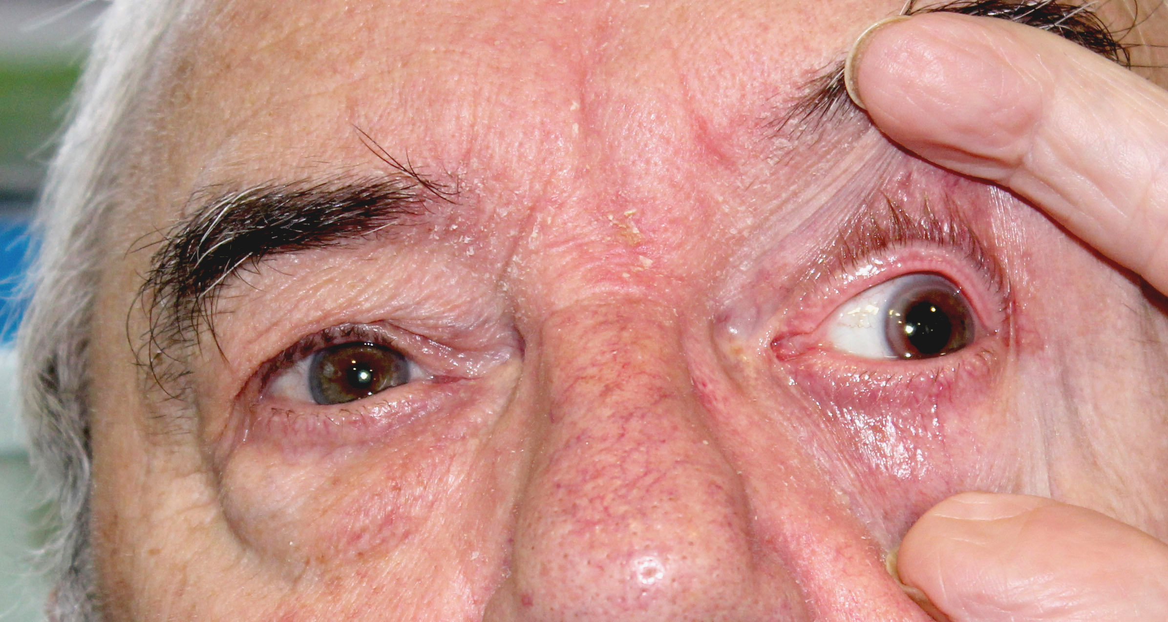 A Man With Headache And Double Vision The Bmj