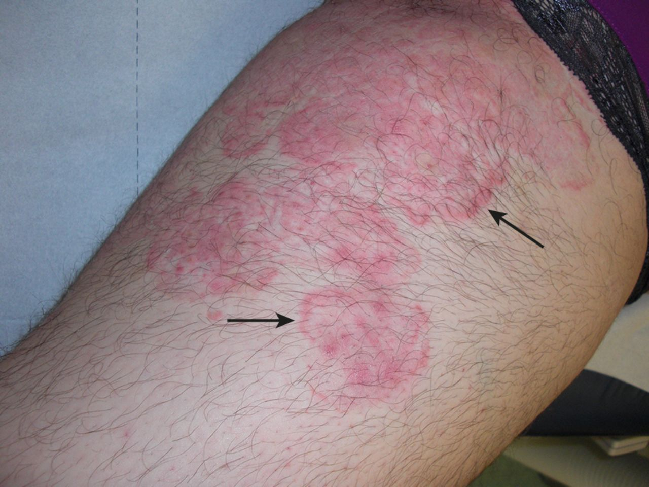 Atypical psoriasis   The BMJ