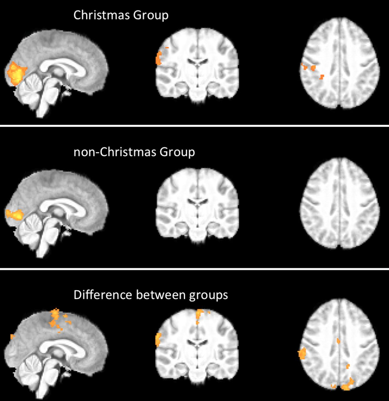 Evidence of a Christmas spirit network in the brain: functional MRI ...