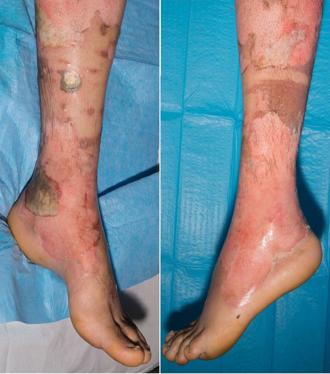 Ongoing effects of burns | The BMJ