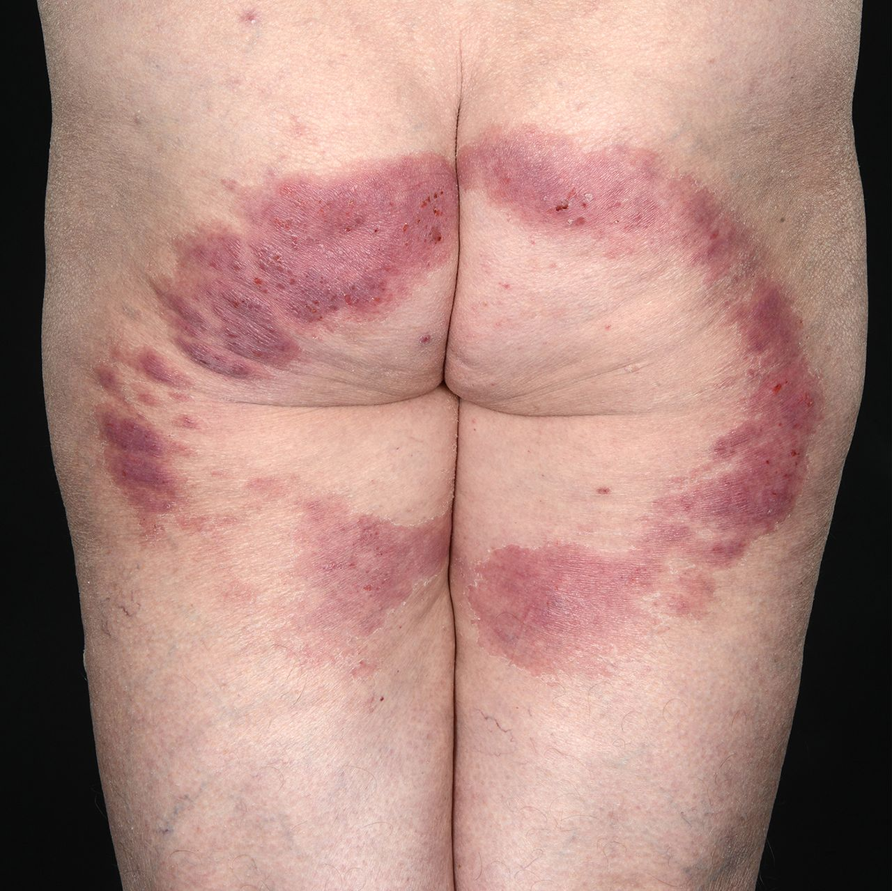 Annular, scaly, erythematous rash on the buttocks and thighs
