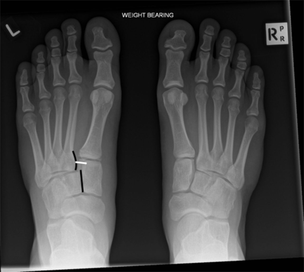 A painful foot: Lisfranc fracture-dislocations | The BMJ