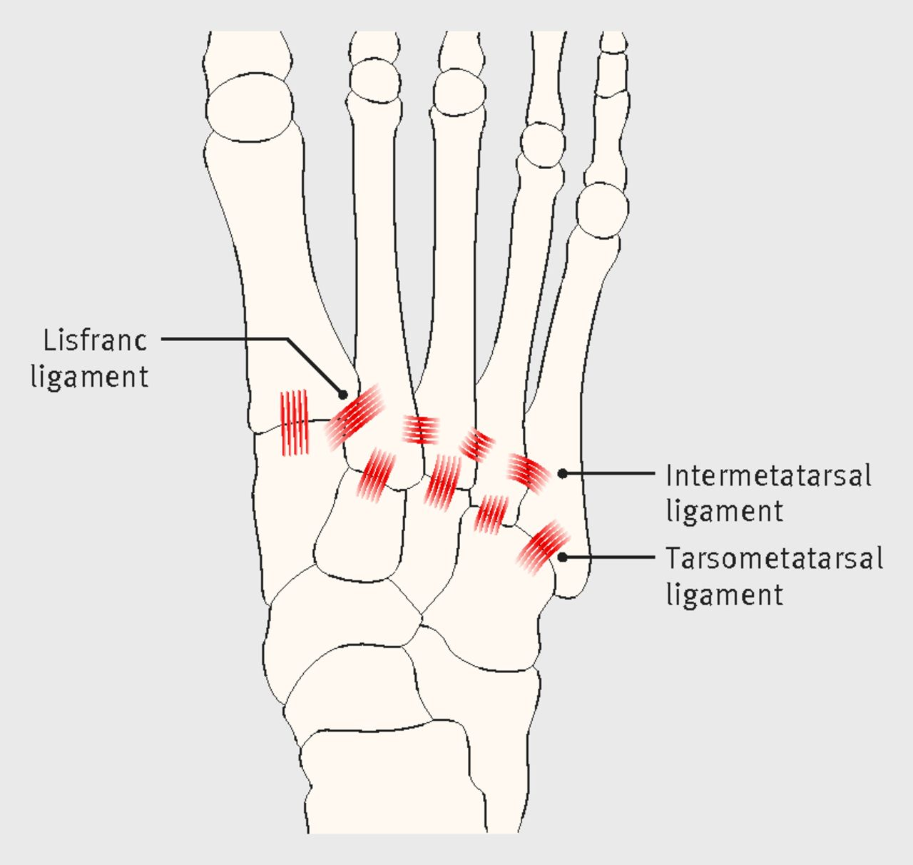 A Painful Foot Lisfranc Fracture Dislocations The Bmj