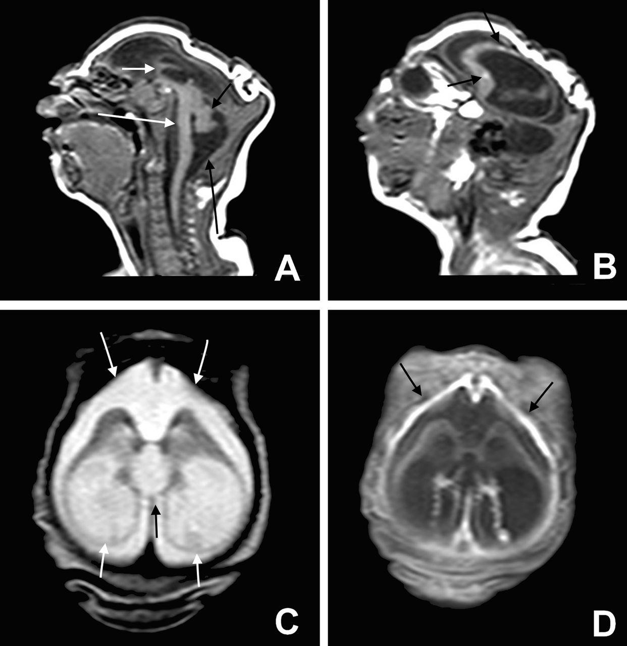 Microcephaly Mri