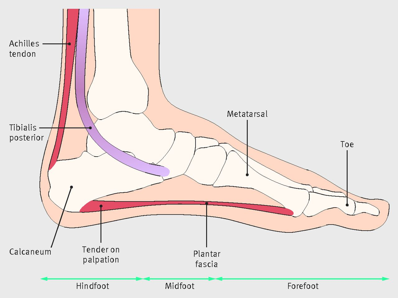2388a02a57 Fig 1 Soft tissue anatomy relevant for differential diagnoses of plantar heel  pain. For plantar fasciitis to be confirmed, pain on palpation is felt over  ...