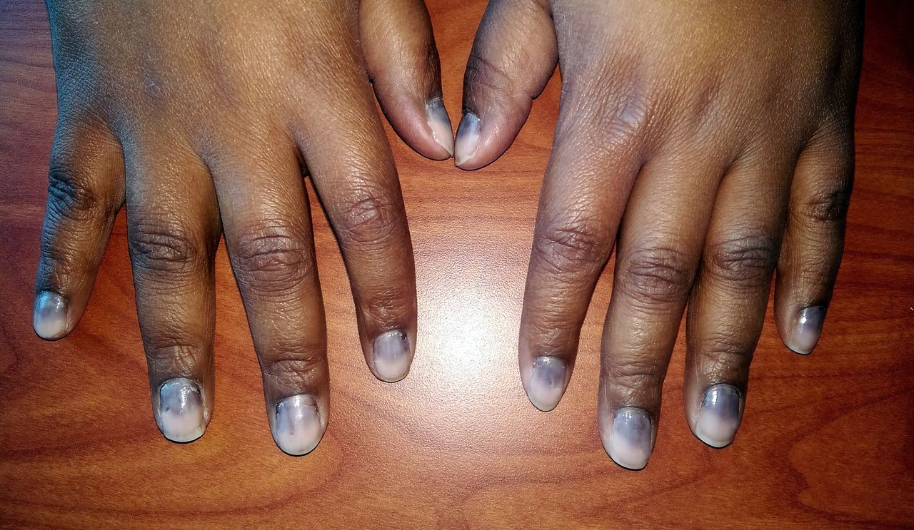 A patient with cancer and nail pigmentation | The BMJ
