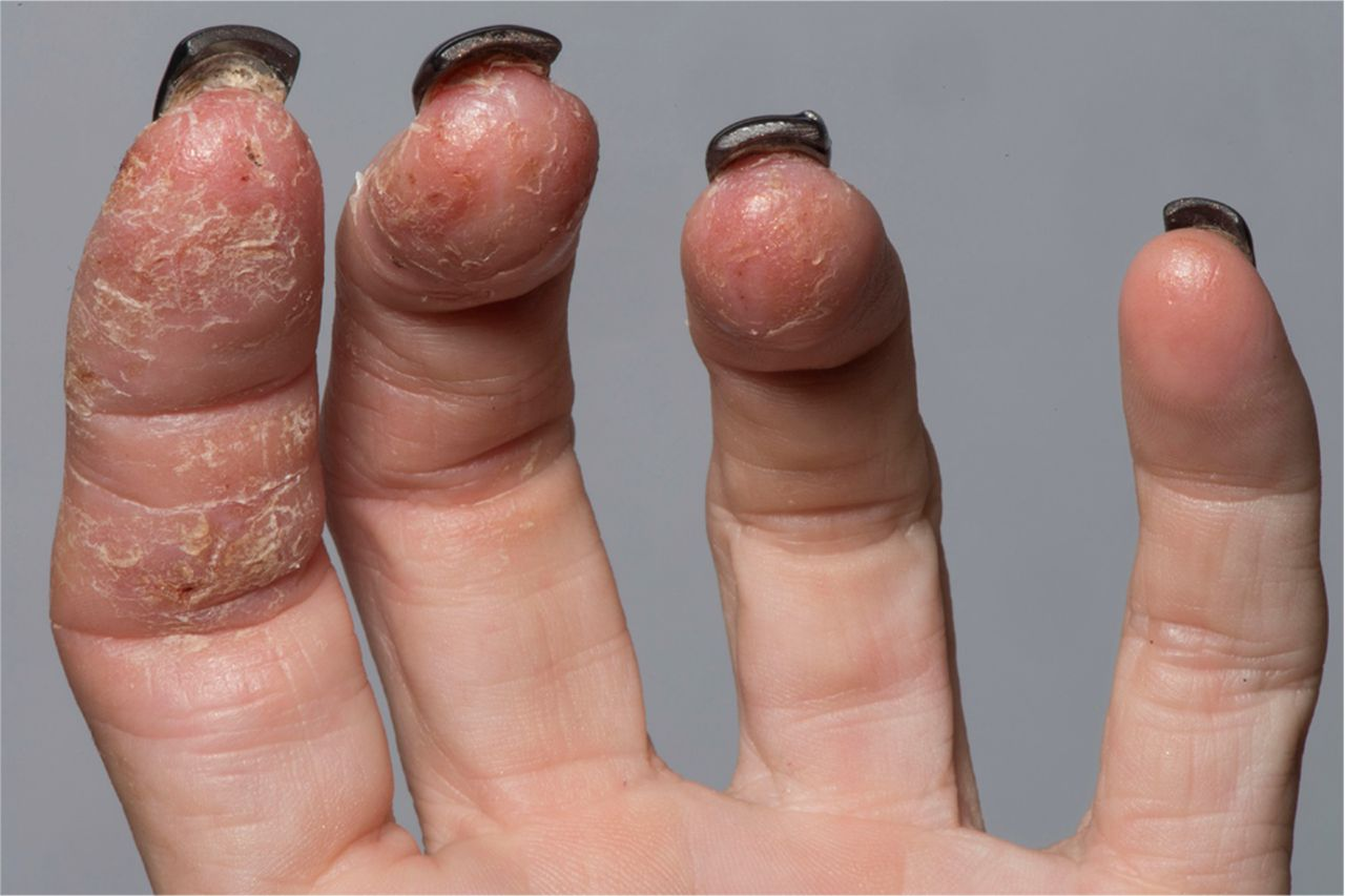 Contact dermatitis | The BMJ