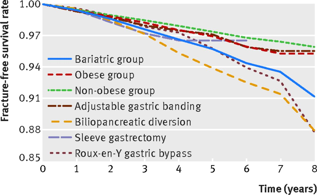 gastric bypass norge