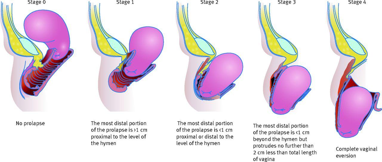 Pelvic Organ Prolapse The Bmj