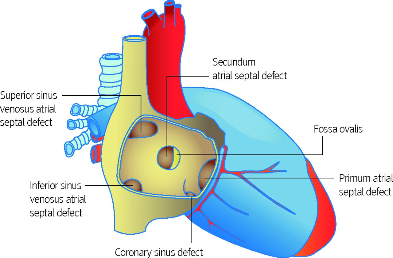 Congenital heart disease in adults | The BMJ
