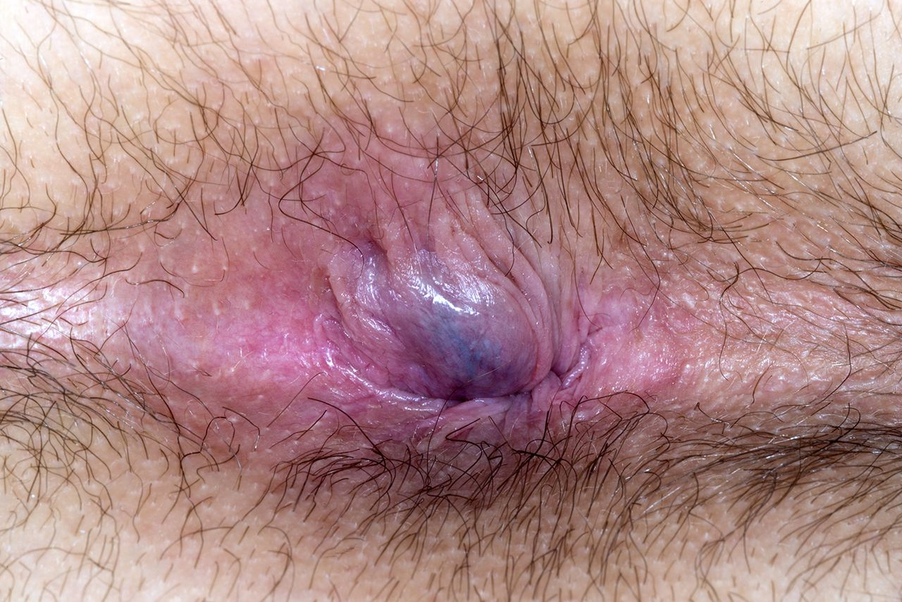 What cause anal itching
