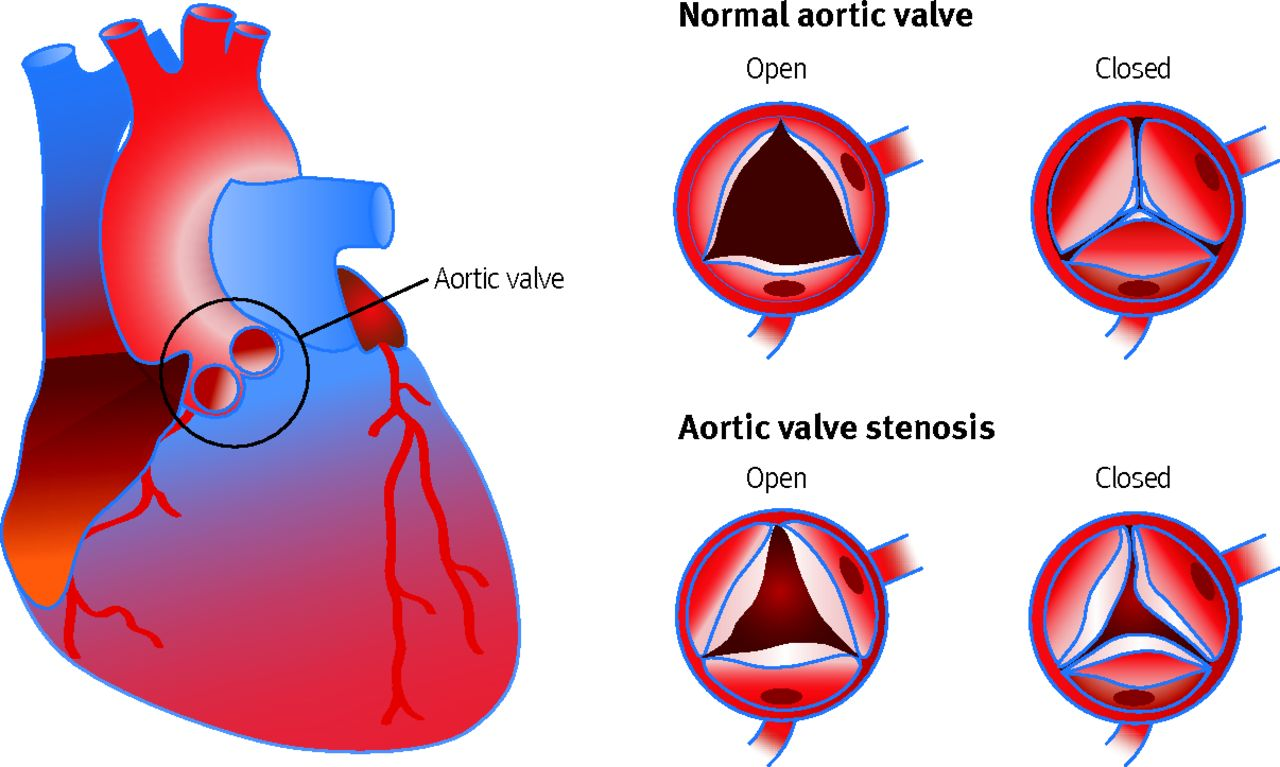 Aortic stenosis: diagnosis and management | The BMJ