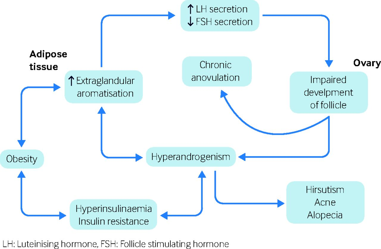 New diagnosis of polycystic ovary syndrome | The BMJ