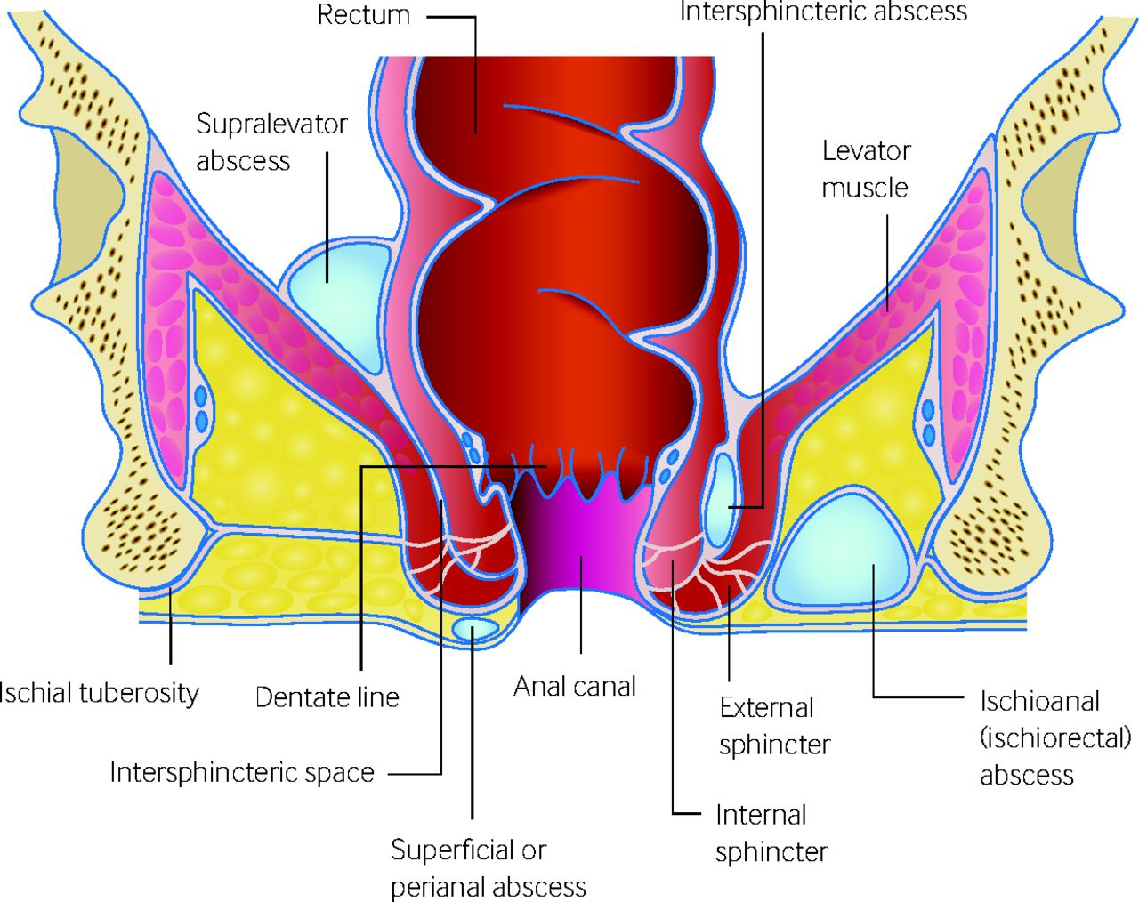 Perianal abscess | The BMJ