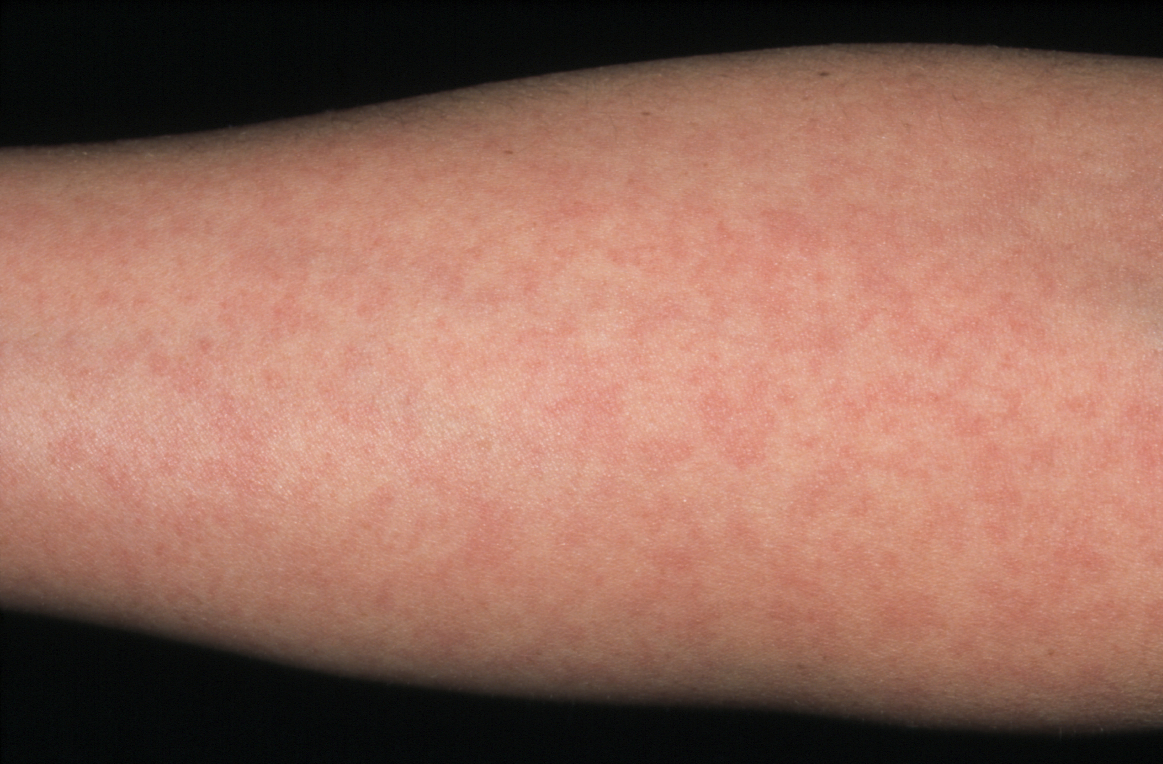 A suspected viral rash in pregnancy | The BMJ