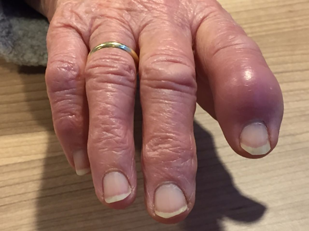 a swollen red finger the bmj